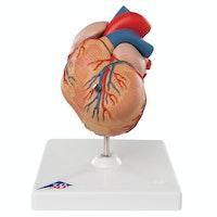 Klassisk hjerte med venstre ventrikuler hypertrophy (VVH), to deler