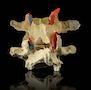 Dynamisk og avanceret rygledsmodel af 2 lændehvirvler. Halvdelen viser degeneration