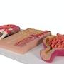 Komplet nyremodel som viser nyren i længdesnit, nefronet og nyrelegemet samlet på en stander