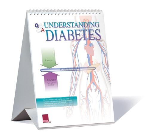 Flipover (bordmodel) om de forskellige typer diabetes (sukkersyge) på engelsk