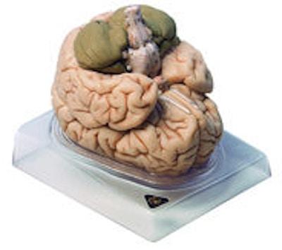 SOMSO Afstøbning af hjerne, 8 dele