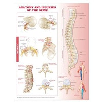 Plansch om ryggradens anatomi och sjukdomar engelska