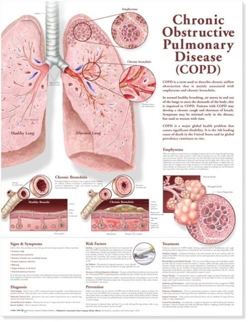 Kronisk Obstruktiv Lungesygdom (KOL) lamineret engelsk plakat