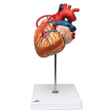 Hjerte med bypass i 2x normalstørrelse med 4 dele
