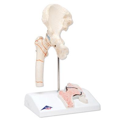 Minihoftemodel med lårbensbrud og hofte leddegigt