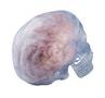 Gennemsigtig kraniemodel som kan deles i 3. Kan tillige indeholde en hjernemodel der kan ses udefra