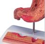Formindsket og detaljeret model af mavesækken som viser betændelse og mavesår