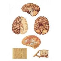 Centrala nervsystemet 84x200 cm