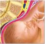 Graviditet lamineret med ringhuller