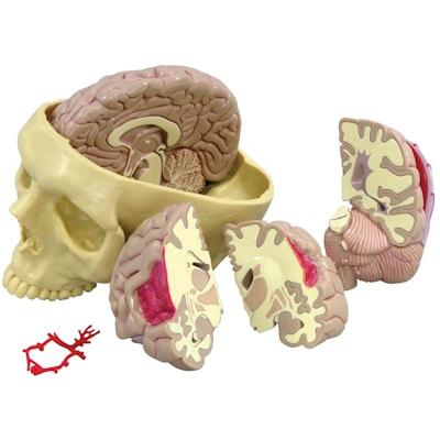 hjernemodel