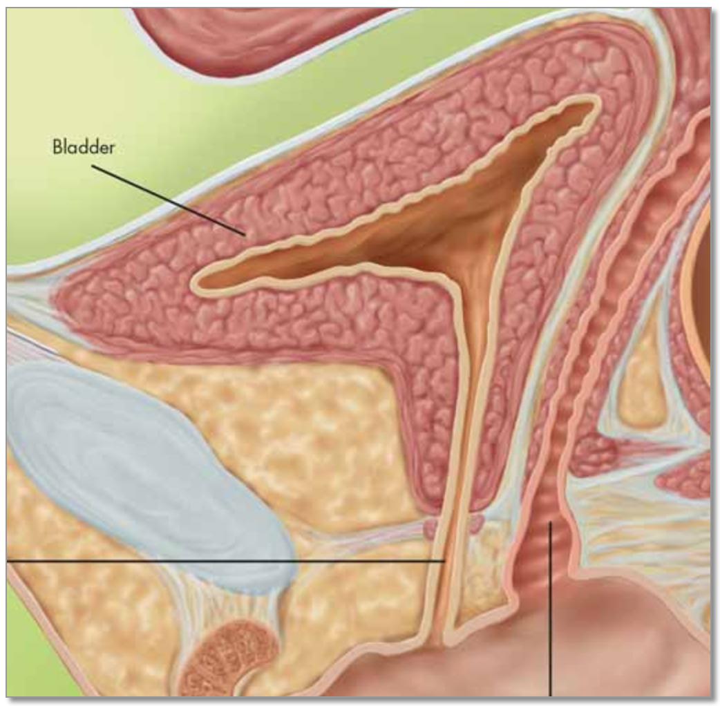 Kvindelig inkontinens lamineret med ringhuller