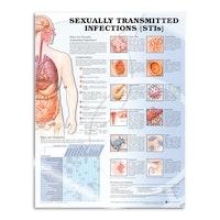 Sexuellt överförbara sjukdomar laminerad affisch