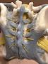 Kvindeligt bækken med ligamenter og nerver