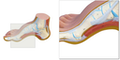 Sæt med 3 fodmodeller der viser en normalfod, en platfod og en hulfod