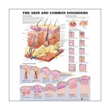 Lamineret plakat om huden og almindelige hudlidelser på engelsk