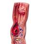 Model som viser spiserøret og lidt af mavesækkens indre med forskellige sygdomme