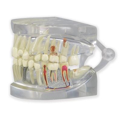 Klar kæbemodel med tænder