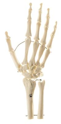 SOMSO Skeletmodel af hånd med del af underarmsknoglerne