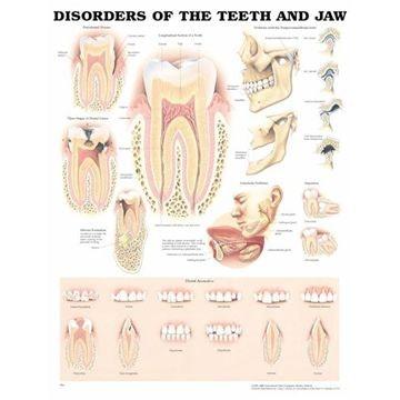 Plakat om lidelser i tænder & kæbe på engelsk