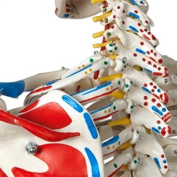 3B top skeletmodel