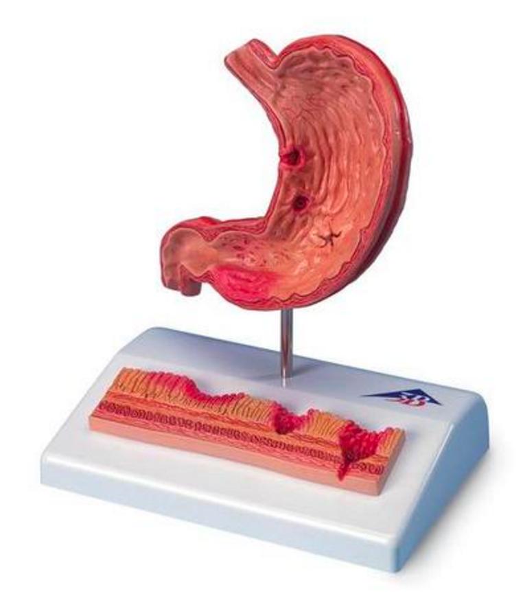 Anatomisk mavemodel med mavesår, minimodel