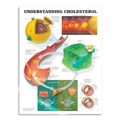 Lamineret plakat om kolesterol på engelsk