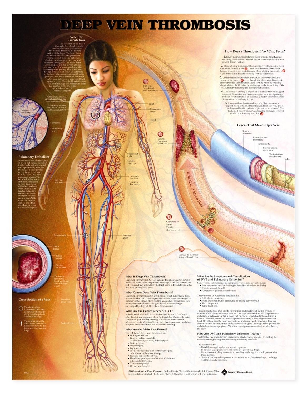 Lamineret plakat om dyb venetrombose (DVT) (inkl. ringhuller)