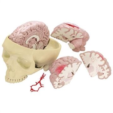 Hjerneskademodel