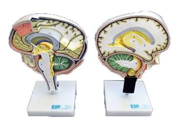 Hjernesektion