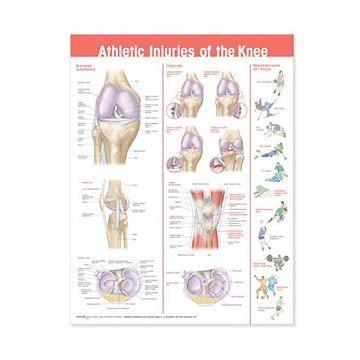 Plakat om knæskader grundet sport på engelsk