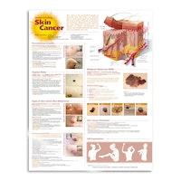 Lamineret plakat om hudkræft på engelsk