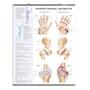Lamineret plakat om artritis på engelsk